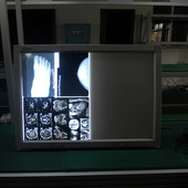 China top quality mammography x ray  film viewer 8 mammo films view box